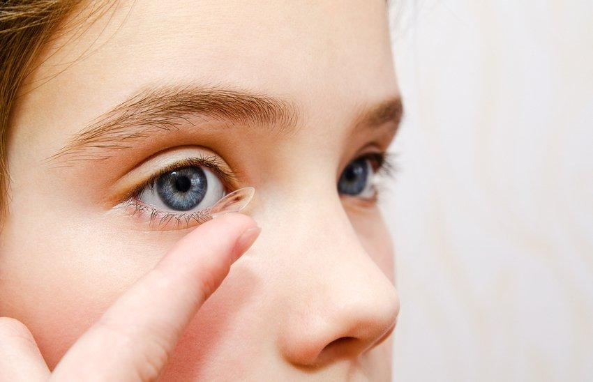 Myopikontroll for barn – kontaktlinser